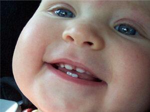 Первые зубы у ребенка: симптомы прорезывания, как помочь ребенку