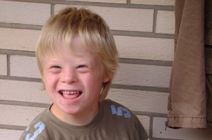 Синдром Патау: причины, признаки, диагностика, лечение