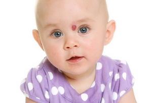 Гемангиома у детей: причины, лечение, удаление, фото