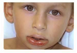 Отек Квинке у детей: симптомы, причины, лечение