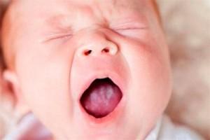 Молочница у грудничков во рту: причины, лечение, профилактика