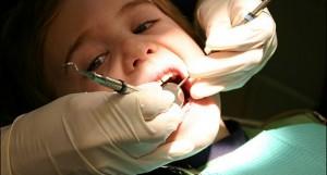 Гингивит у детей: причины, симптомы, лечение
