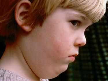 Эпидемический паротит у детей: вакцинация, профилактика, осложнения