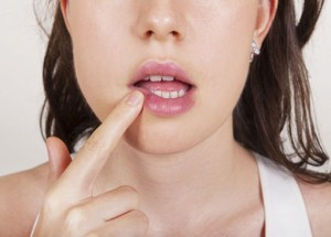 Герпес при беременности: лечение, рецидивы. Влияние герпеса на плод