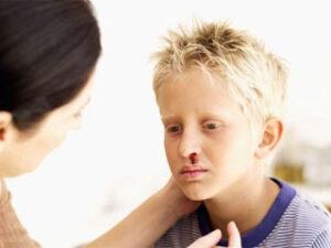 Носовые кровотечения у ребенка: причины, лечение, профилактика