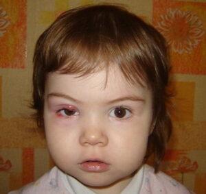 Ячмень на глазу у ребенка: причины, что делать и как лечить ячмень