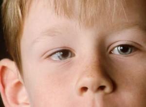 Косоглазие у детей: причины и лечение косоглазия